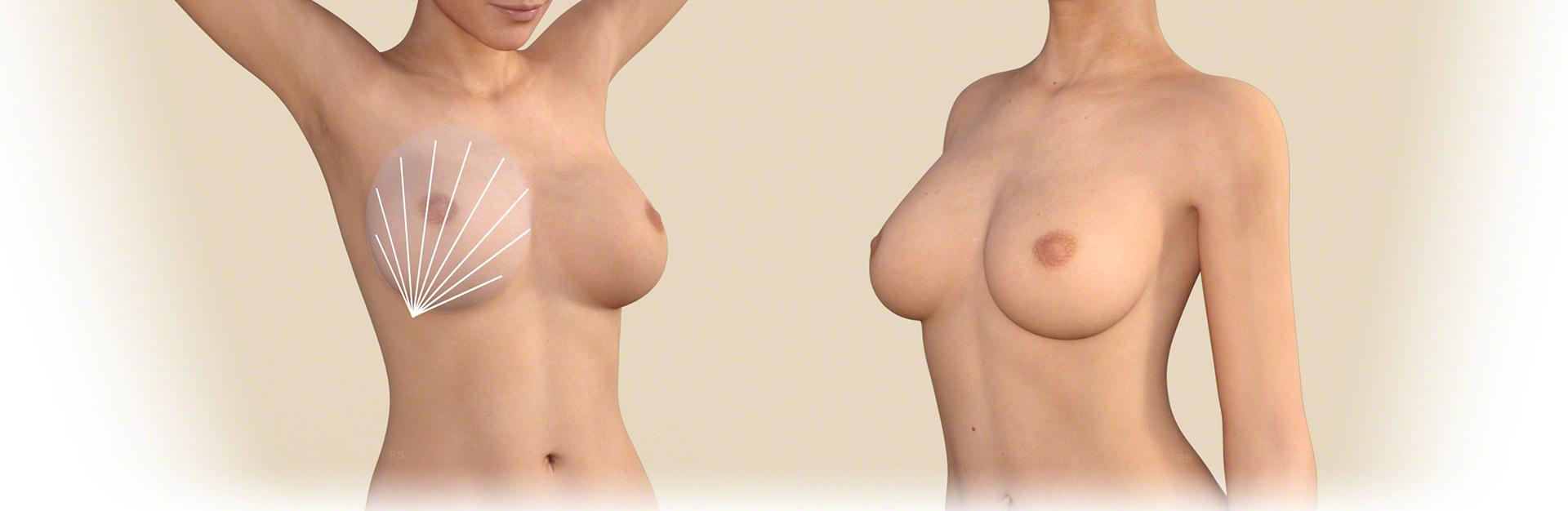 Brustvergrößerung mit Eigenfett Düsseldorf